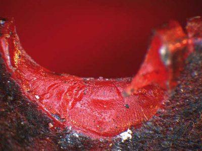 Zentrierstopfen-Sproedbruch